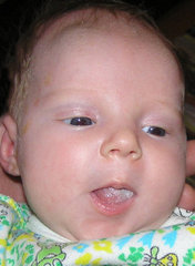 Молочница у детей фото